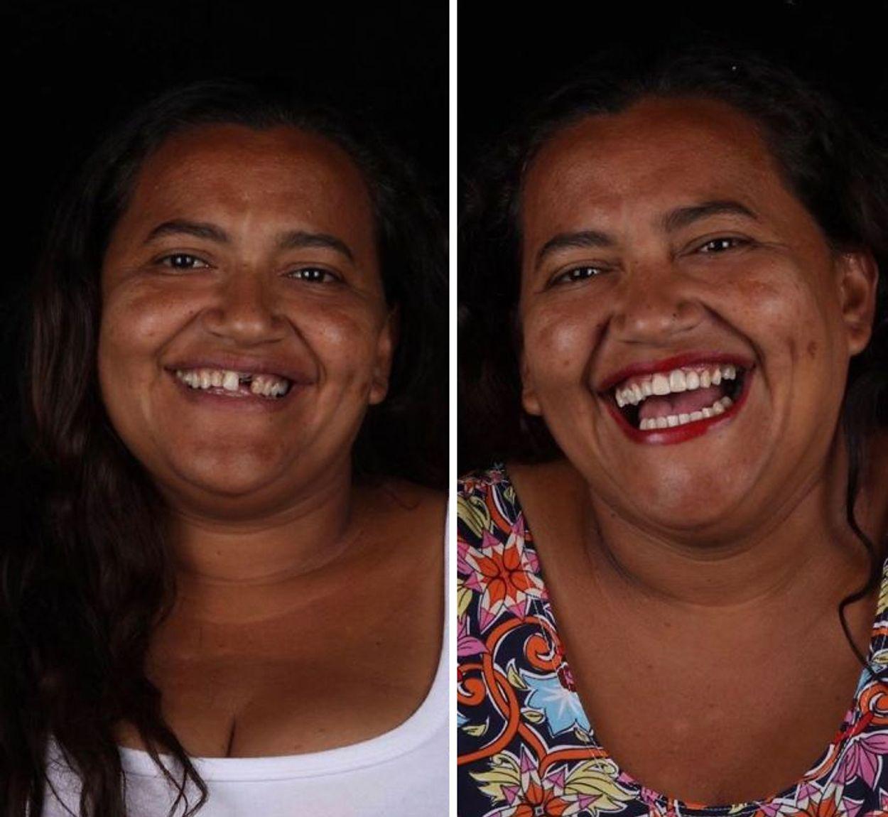 brazilian-dentist-travel-poor-people-teeth-fix-felipe-rossi-37-5db9515e41f4c__700