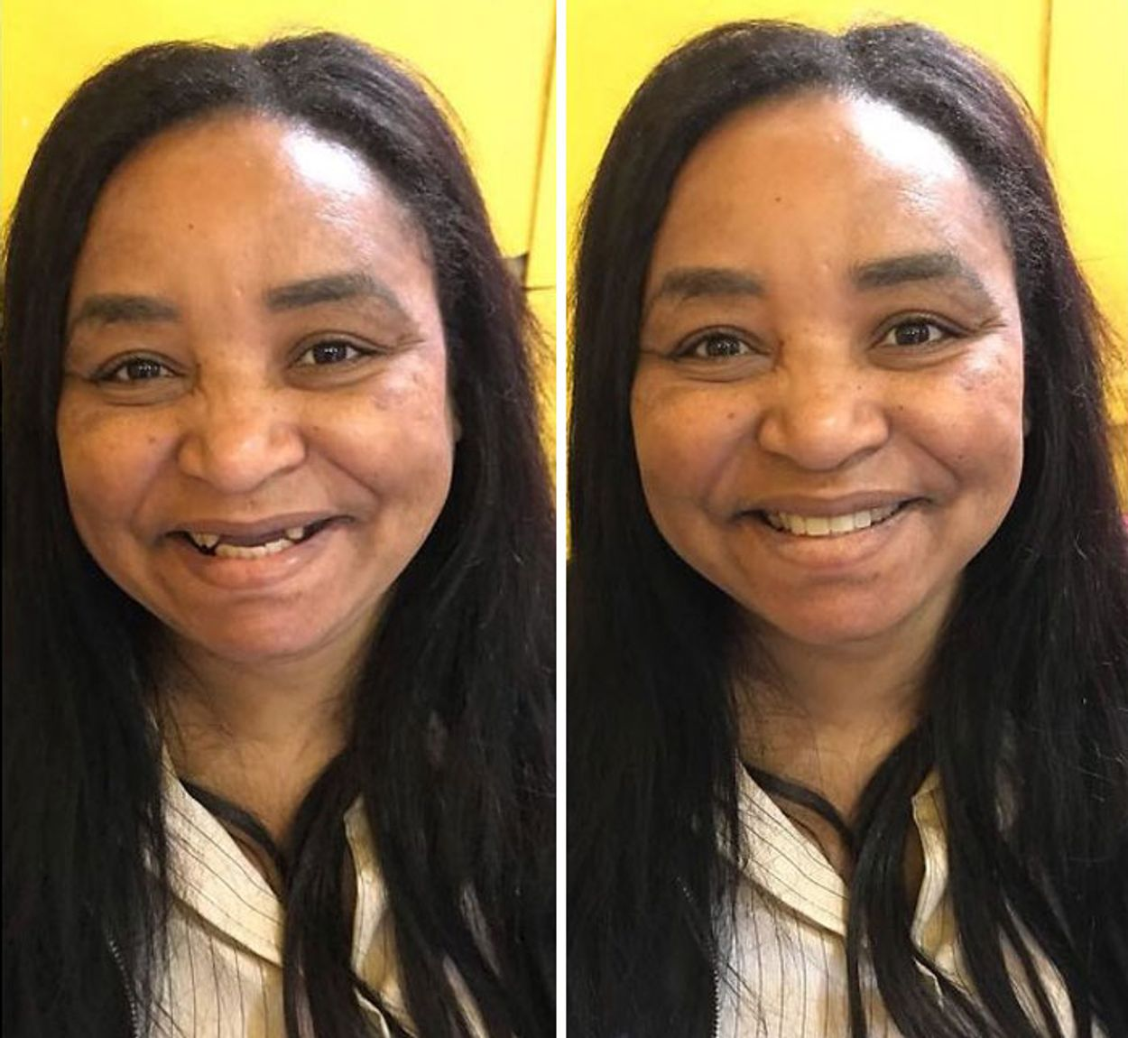 brazilian-dentist-travel-poor-people-teeth-fix-felipe-rossi-40-5db95391ac521__700