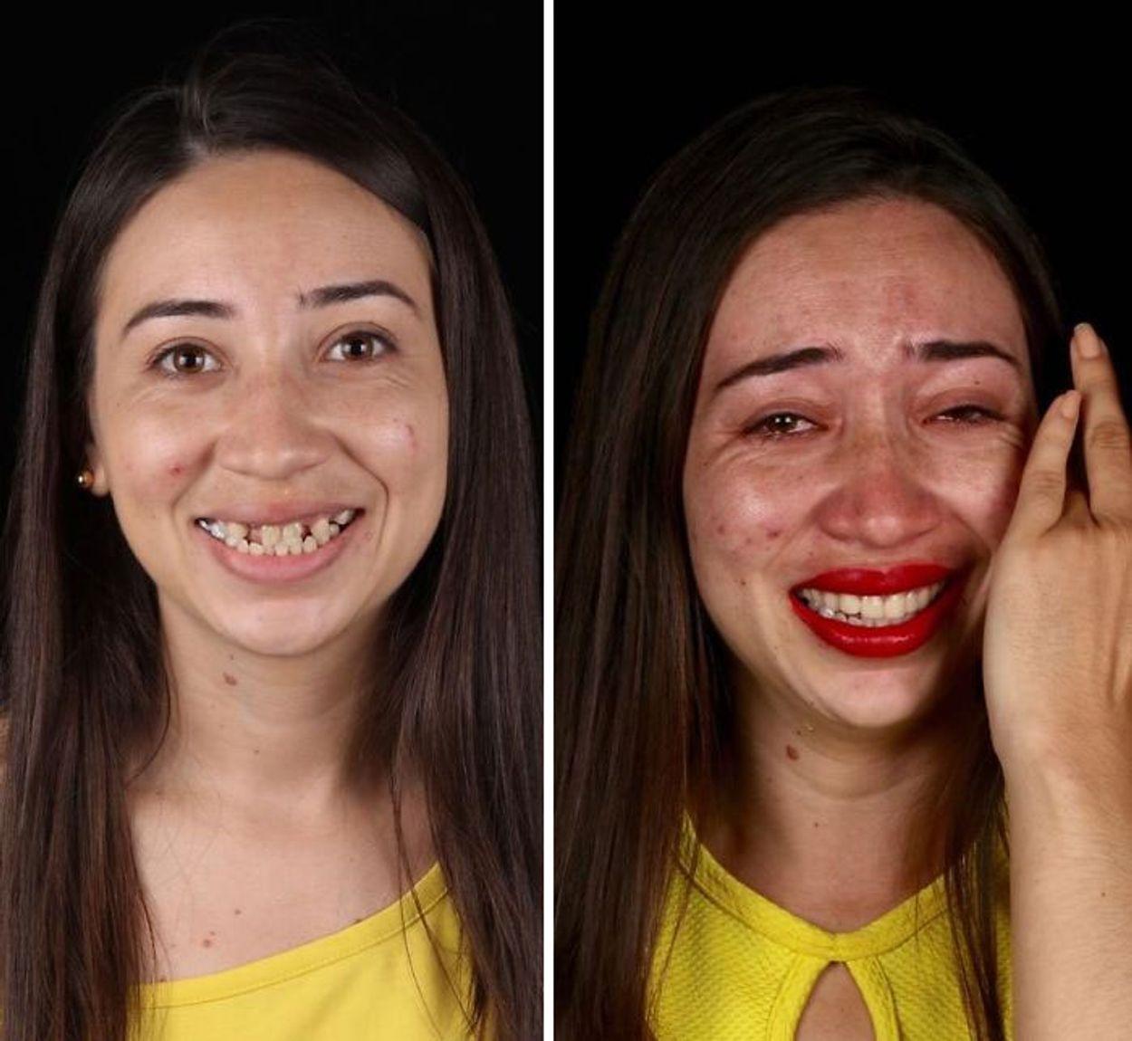 brazilian-dentist-travel-poor-people-teeth-fix-felipe-rossi-32-5db94f6e9ec9f__700