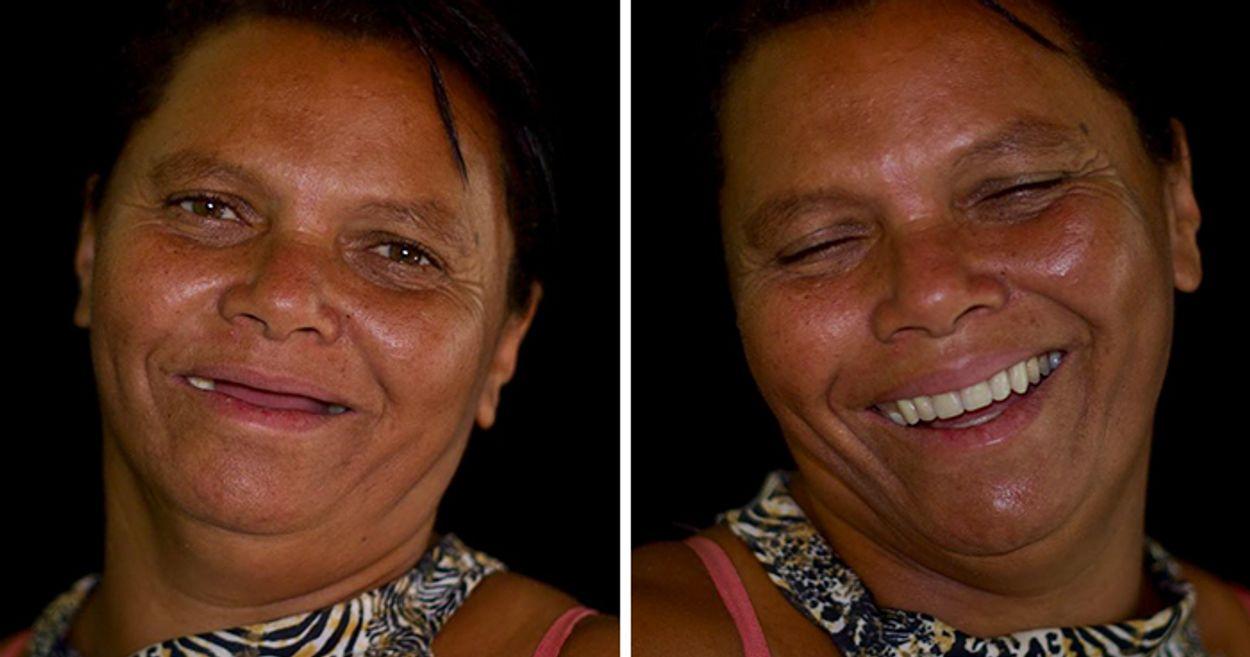brazilian-dentist-travel-poor-people-teeth-fix-felipe-rossi-28-5db941b69488a__700