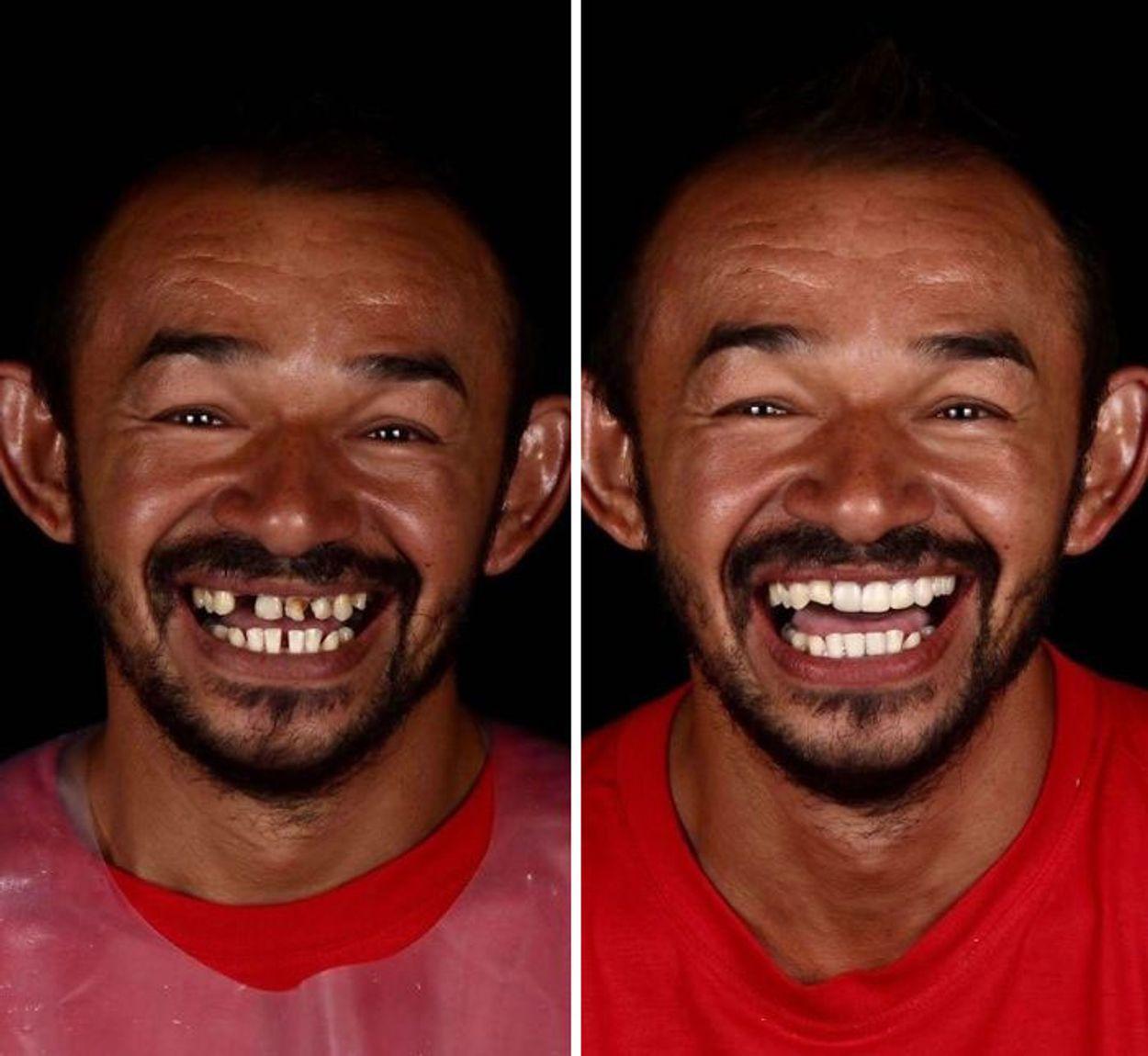 brazilian-dentist-travel-poor-people-teeth-fix-felipe-rossi-34-5db94fcb2d758__700