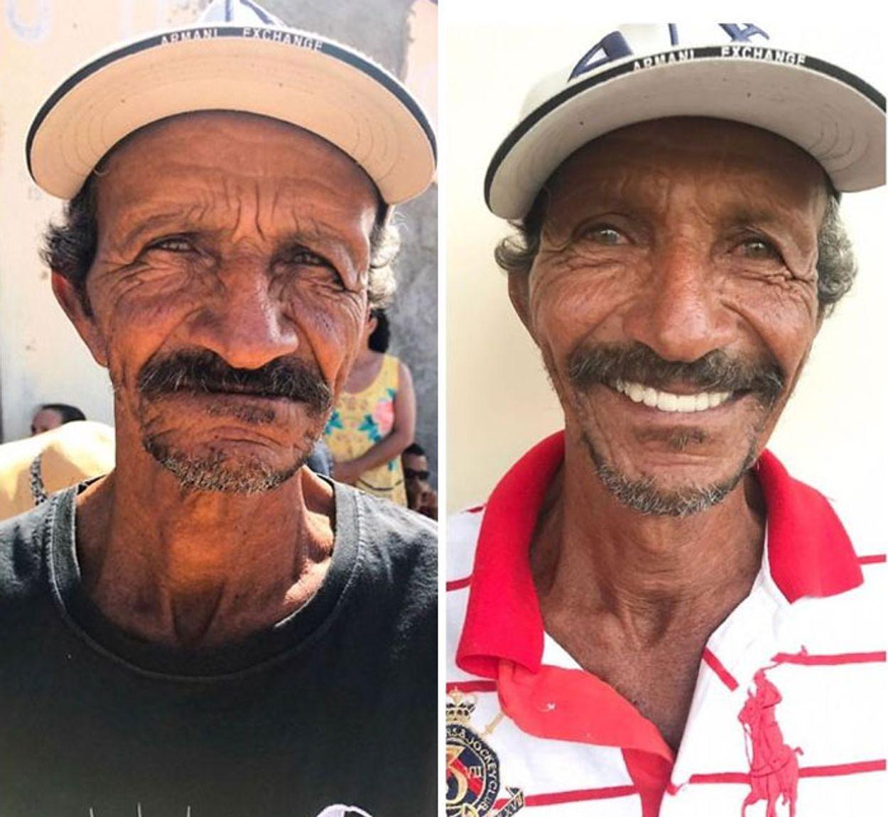 brazilian-dentist-travel-poor-people-teeth-fix-felipe-rossi-41-5db953ca47896__700
