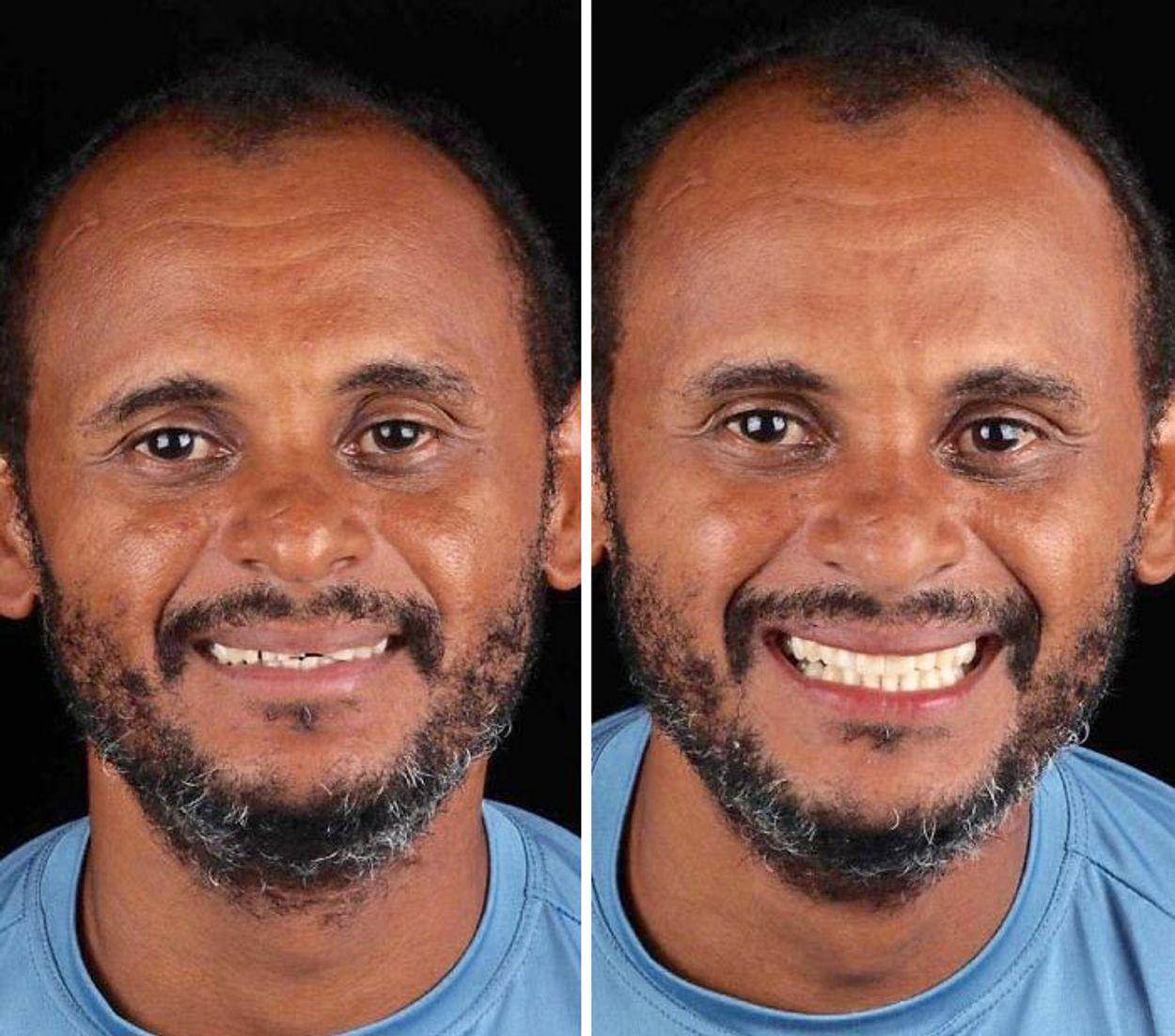 brazilian-dentist-travel-poor-people-teeth-fix-felipe-rossi-54-5db95680bbdbf__700