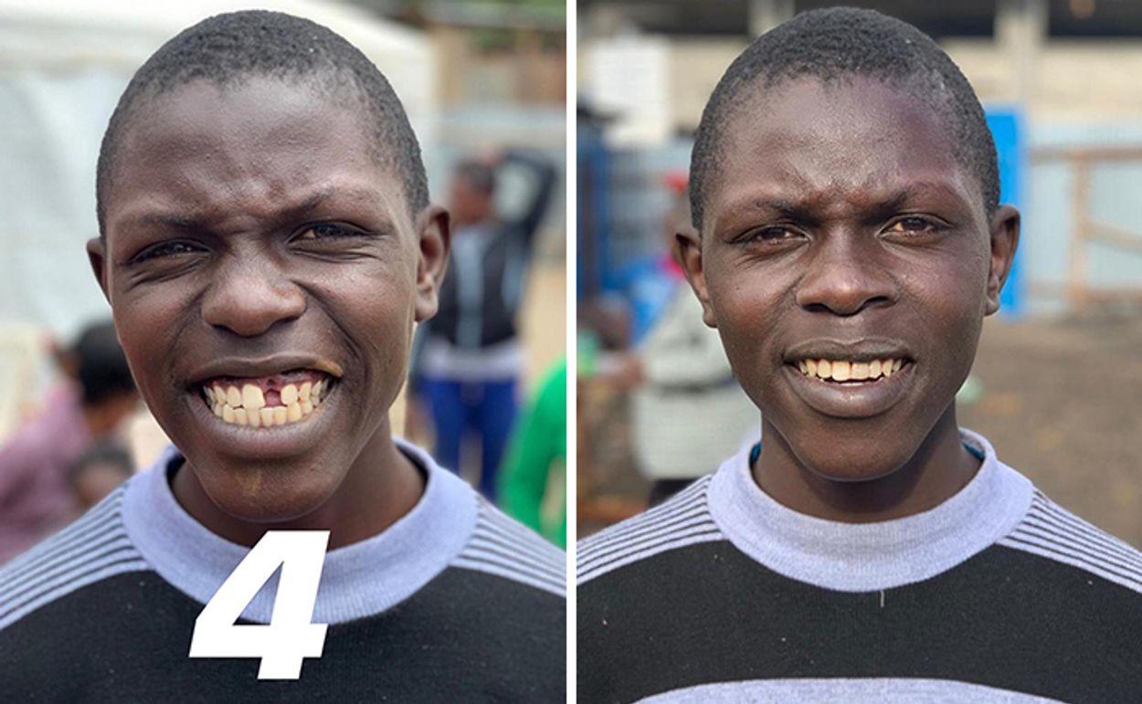brazilian-dentist-travel-poor-people-teeth-fix-felipe-rossi-26-5db941b324a91__700