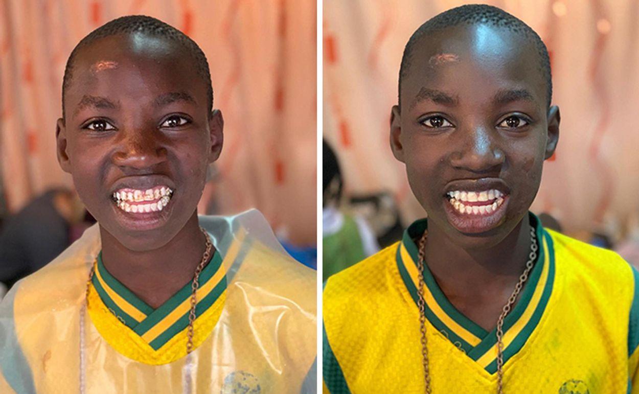 brazilian-dentist-travel-poor-people-teeth-fix-felipe-rossi-25-5db941b14d319__700
