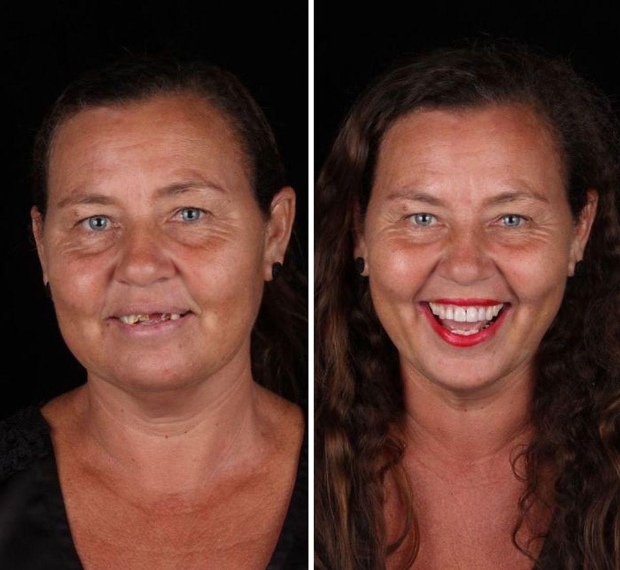 brazilian-dentist-travel-poor-people-teeth-fix-felipe-rossi-35-5db94ff6b6ab6__700
